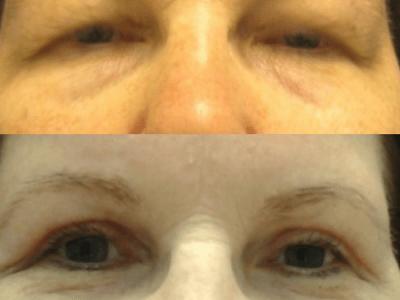 blefaroplastyka-2