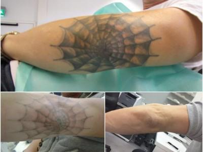 dellie-laseroterapy-usuwanie-tatuau
