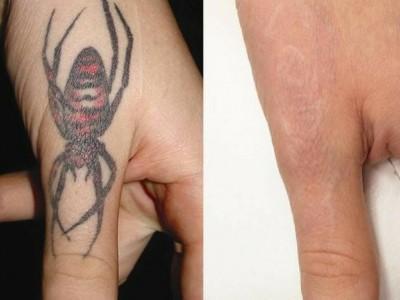 dellite-laseroteraphy-usuwanie-tatuazu-2