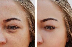 redukcja-podkrazonych-oczu